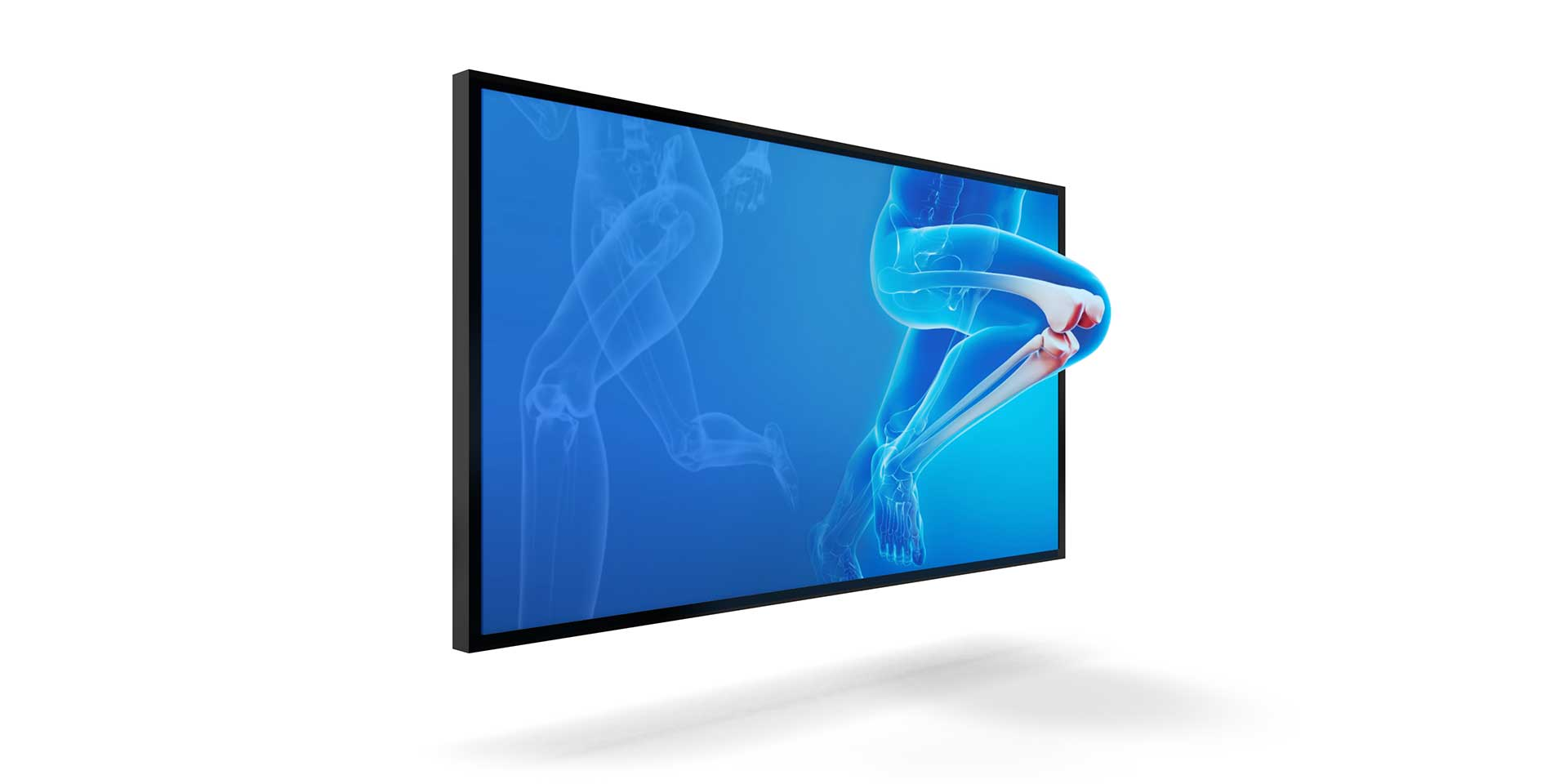3D Global GmbH 3D Medical Screen X-Ray